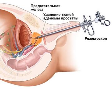 Норма предстательной железы у мужчин 60 лет