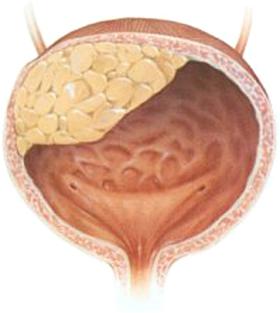 Опущение мочевого пузыря