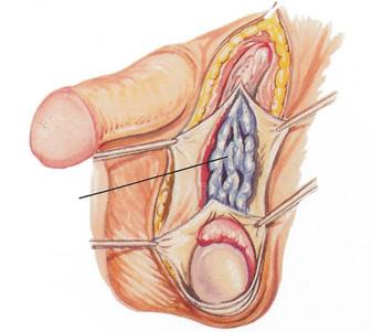 Как вылечить тромбоз глубоких вен