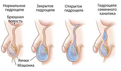 Противовоспалительные препараты для простаты